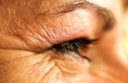 rughe-contorno-occhi_222